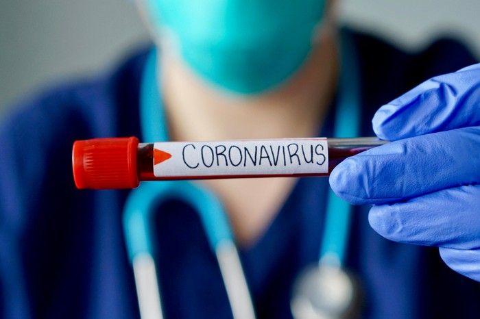HZJZ: Novi pozivni centar za koronavirus 113